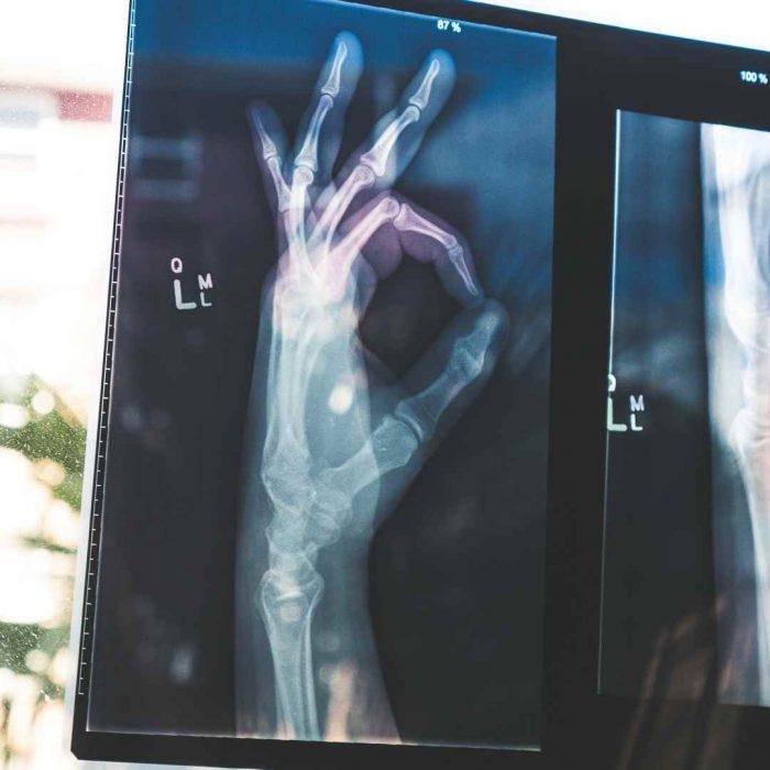 kemik, röntgen, eklem
