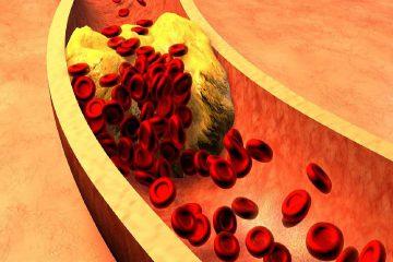 kolesterol, kan yağı, cholesterol
