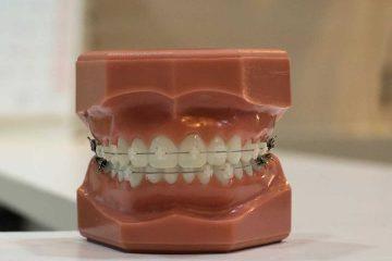 diş, diş teli ,diş maket