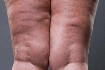 bacak selülidi, selülit, cellulite