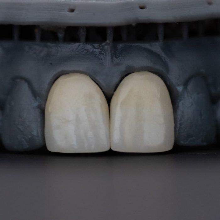 siyah, beyaz, diş beyazlatma, ön dişler