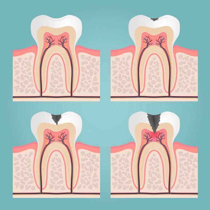 kanal, kök, diş, kanal tedavisi, ağrı, pulpa, dentin, diş dokusu, doku, dental anatomi, dental, anatomi
