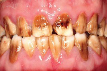 Mine dokusu kaybı sebebiyle aşırı derecede renklenmiş şiddetli dental florozis